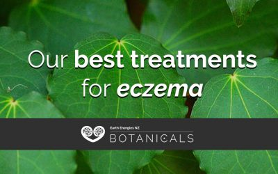 Our best treatments for eczema